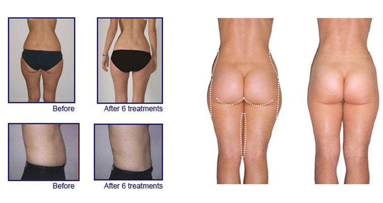 Laser Lipo Sessions
